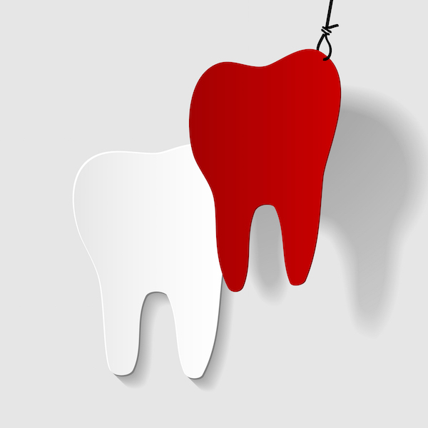 What to do after having a tooth pulled