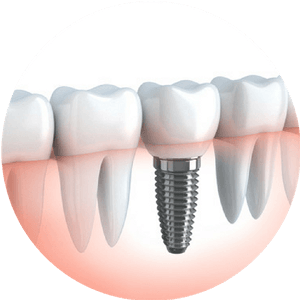 Dental Implants Denver - Dentistry of Colorado